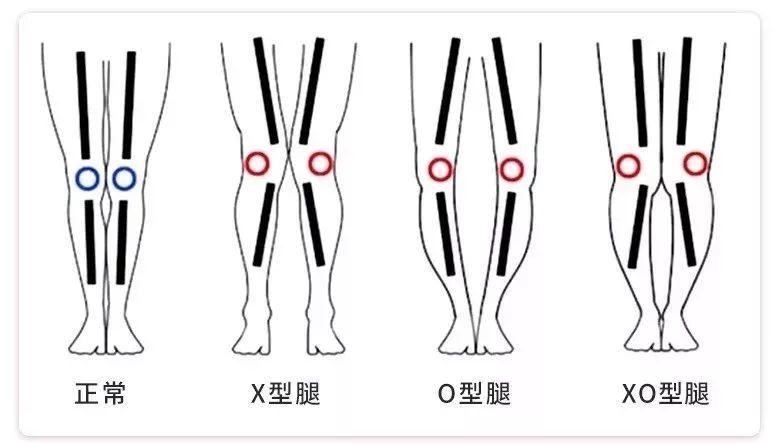 """维密私教美腿秘籍:减腿围 · 消肌肉 · 矫正腿型,每天15分钟练出""""女神腿""""-第28张图片-爱课啦"""
