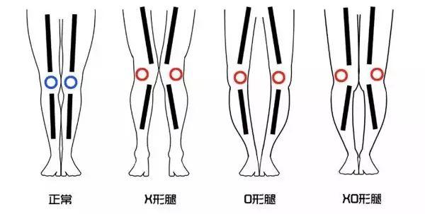 7天美腿修炼计划:矫正X型腿,快速打造细长直,完美腿型练出来!-第8张图片-爱课啦